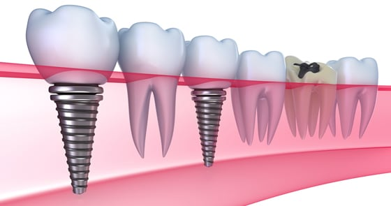 Graphics of dental implants