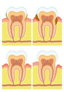 Gum Treatment (Periodontics) | T32 Dental