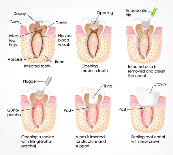 T32 Services Root Canal Treatment - graphics of a root canal treatment process