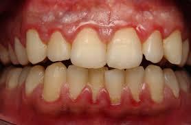 gum swelling