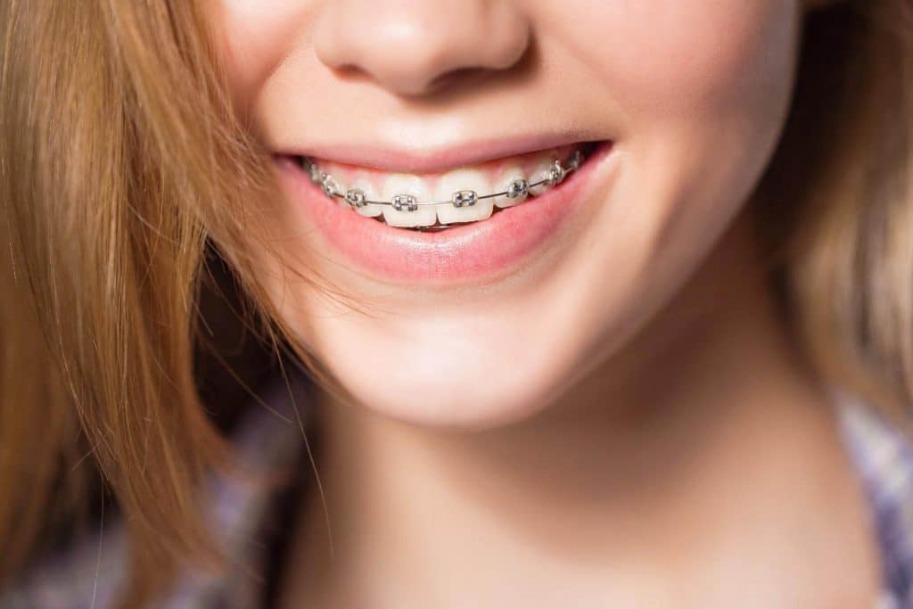 5 Things You Must Know Before Trying Invisible Braces 2