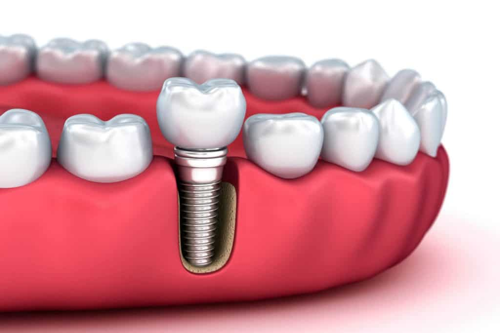 5 Types of Dentist and How They Can Help You 4