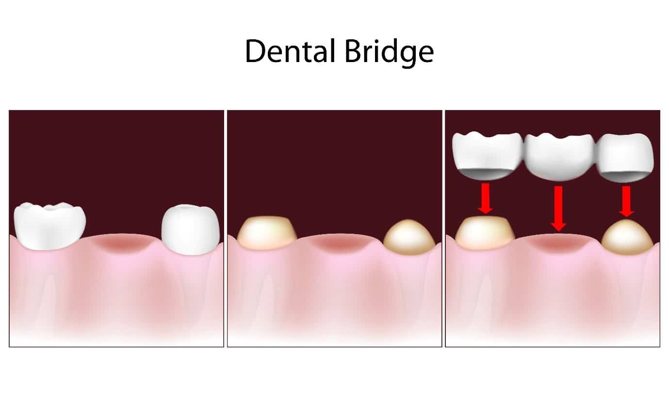 T32 Dental Replace Your Missing Teeth With Denture Bridge