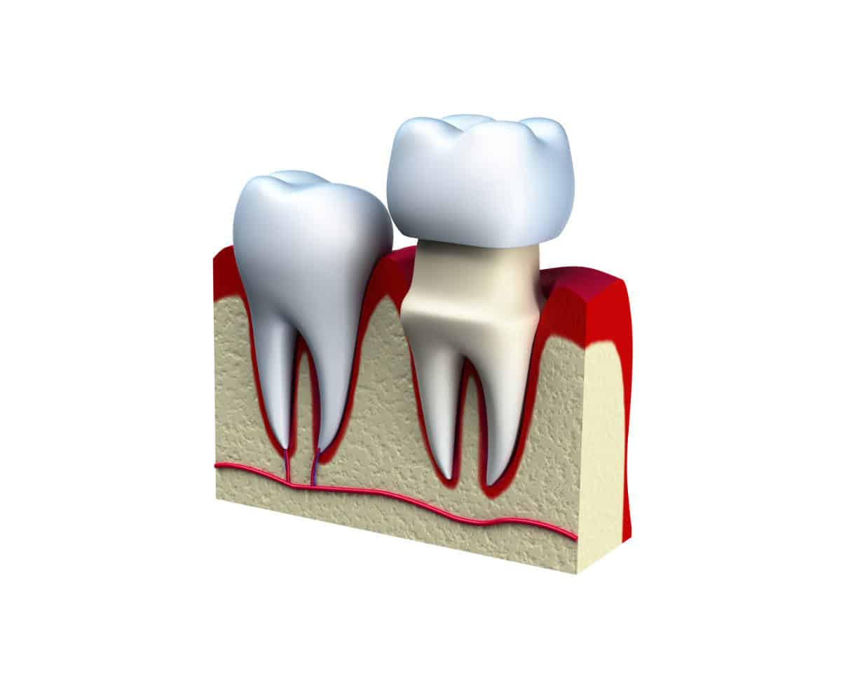 isolated dental crown installation process - graphics