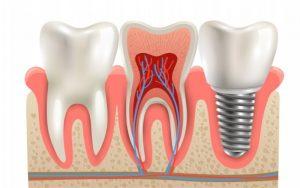 Visual illustration of Dental Implants