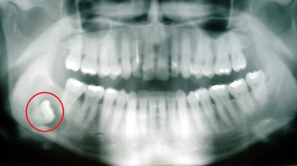 5 wise facts about wisdom teeth_1