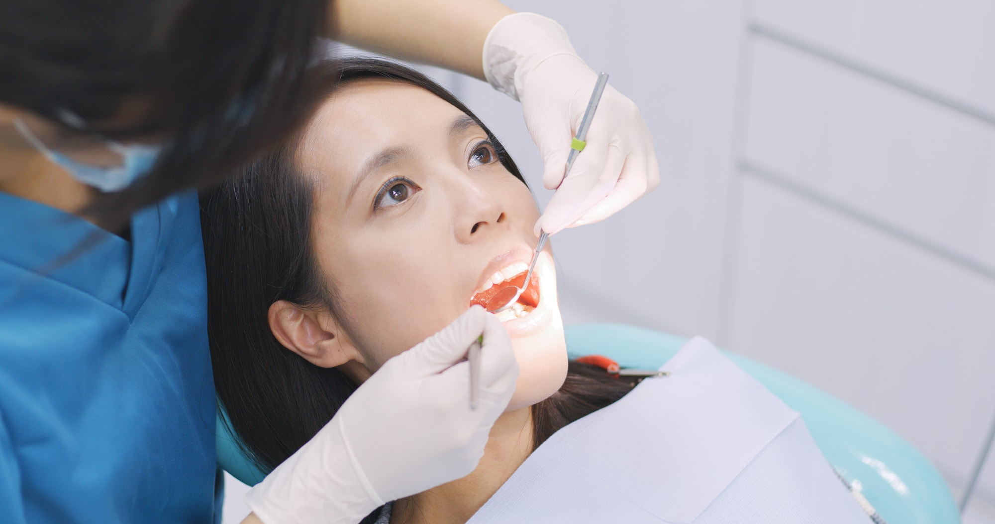 Dentist examining a patient teeth in the dentist - 5 wise facts about wisdom teeth