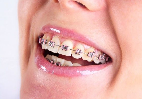 A woman's teeth with braces